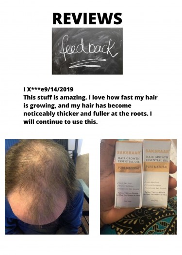 Are You Worried About Hair Loss? - Call Shawn Now!
