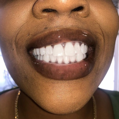 Whitening Your Teeth For That Interview