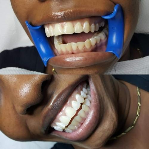 LED Teeth Whitening