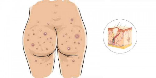 Buttocks Acne Treatment And Products