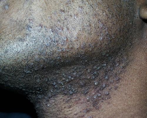 Chemicals Peels Skin Peels
